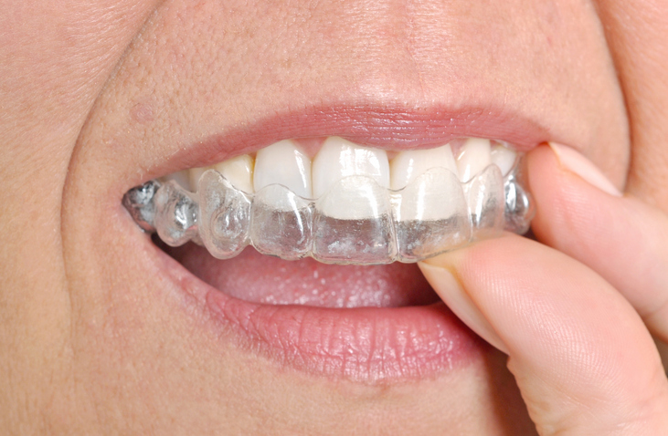 Woman putting invisible braces in her mouth